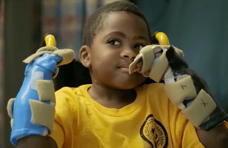 Zion Harvey, world's first pediatric bilateral hand transplant recipient. (via The Children's Hospital of Philadelphia/Youtube)