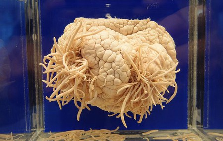 The Meguro Parasitological Museum has 300 parasite specimens on display