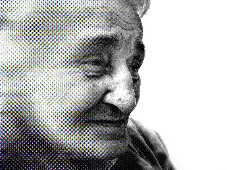 Most Alzheimer's patients are over age 65.