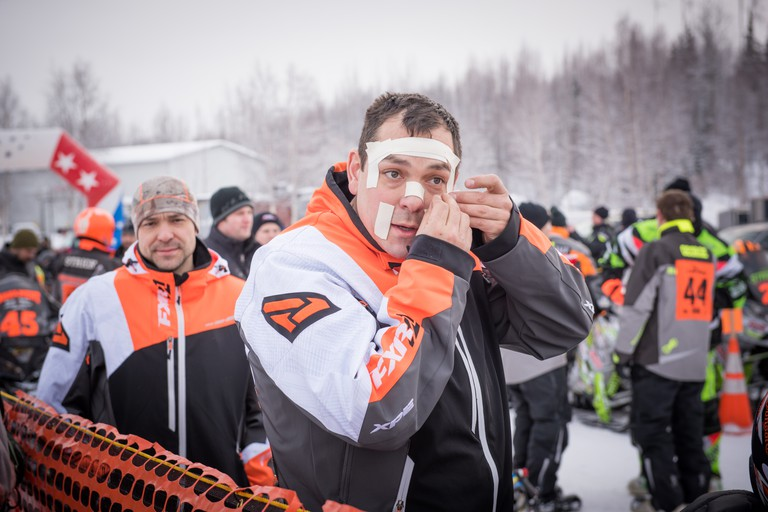 Riders put Duct tape or surgical tape on their face not protected by goggles or helmet to avoid frostbite | Roger Clifford, Official Iron Dog Photographer