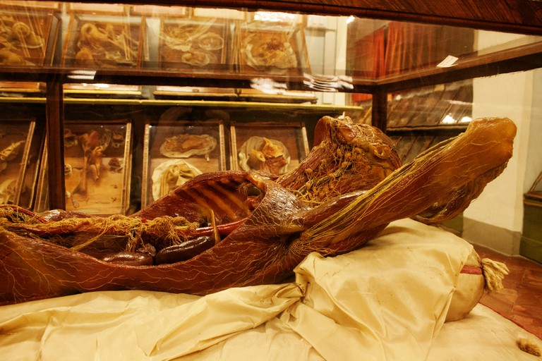 Anatomical Waxes in the Specola Museum