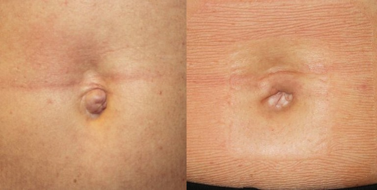 Before and After Belly Button Surgery, Courtesy of RealSelf