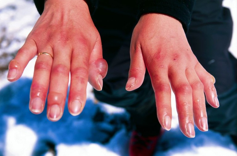 Hands affected by frostbite / Wikicommons
