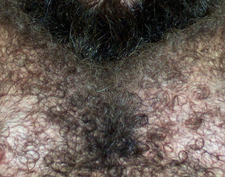 Unruly chest hair could cost a Viking his wife