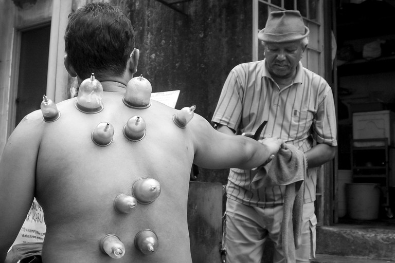 Traditional cupping therapy