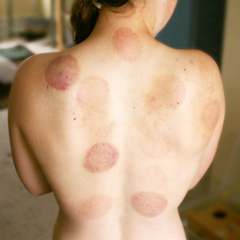The after effects of cupping