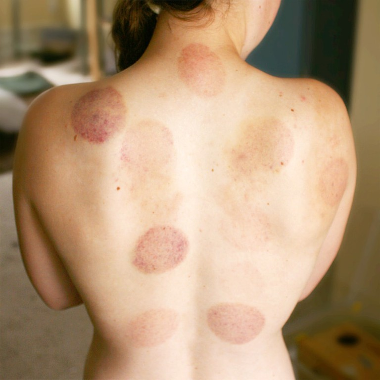 Bruising_on_back_from_Cupping