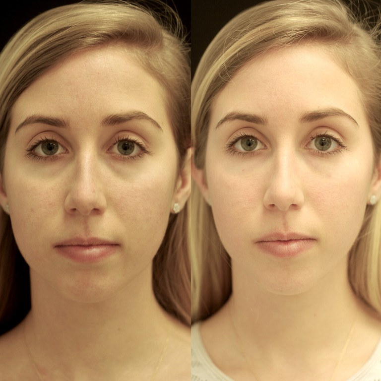 Under-eye injections, before (left) and after
