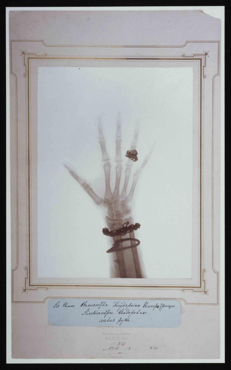 xray of the hand and wrist of the Tsarina, 1898 c.Harvard Medical Library