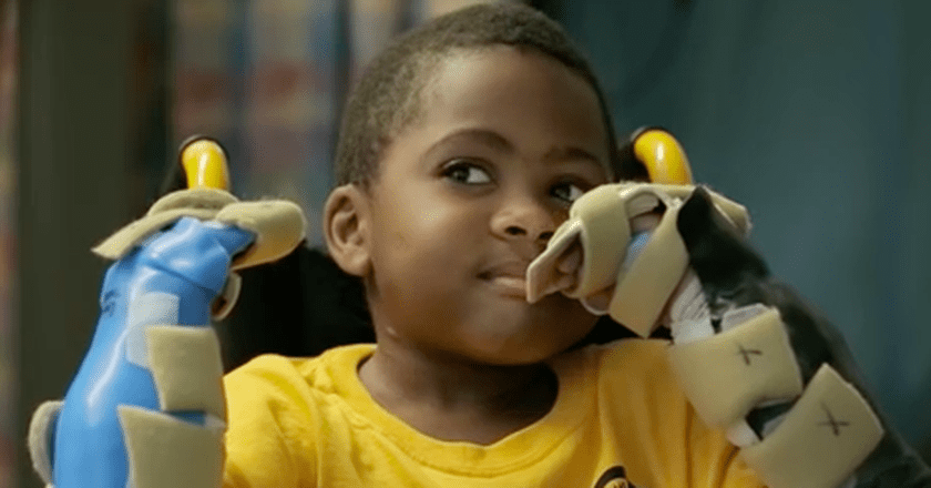 Zion Harvey, world's first pediatric bilateral hand transplant recipient. (via The Children's Hospital of Philadelphia/Youtube)