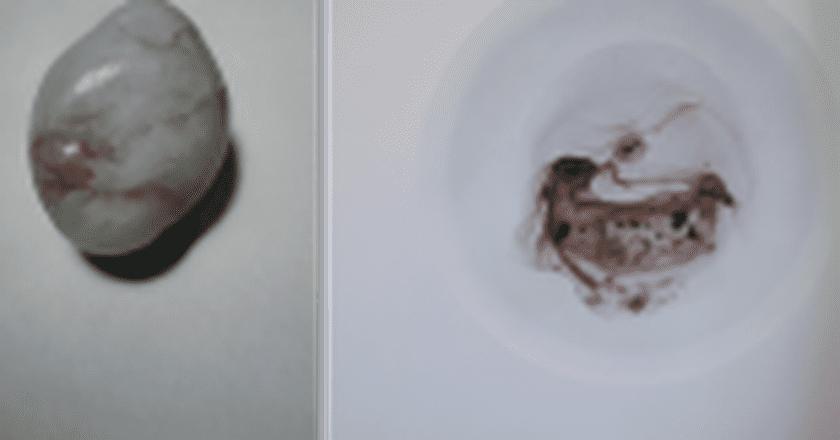 Zhu Yu: China's Baby-Eating Shock Artist  Goes Hyperreal